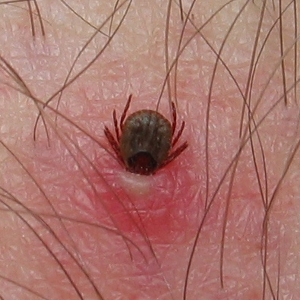 How To Remove A Tick In Humans Uk Preppers Guide